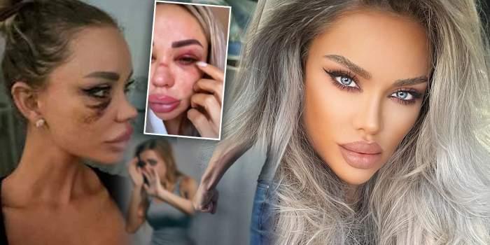"""Bianca Drăgușanu a făcut publice imaginile cu ea în care e bătută: """"Le dau eu"""""""