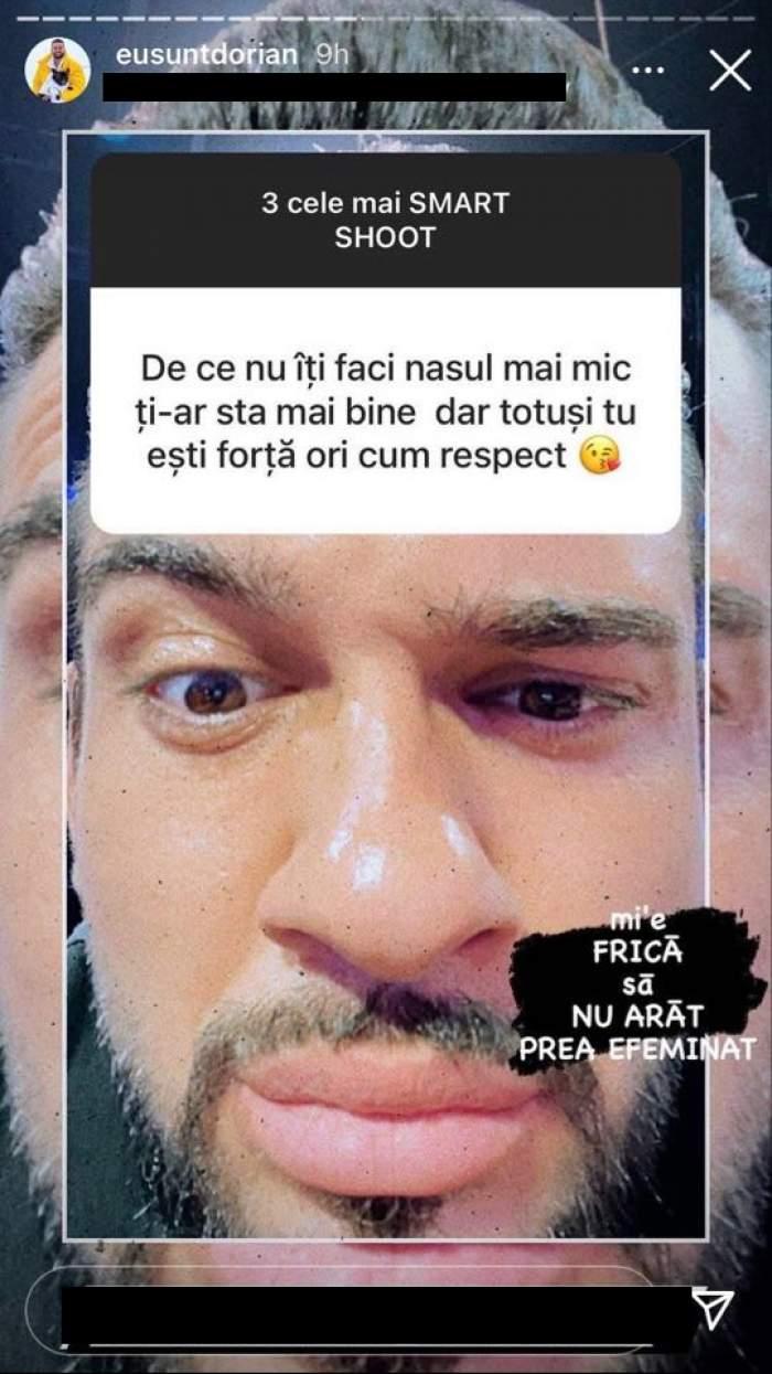 Dorian Popa le-a explicat fanilor de pe Instagram de ce nu și-a micșorat nasul