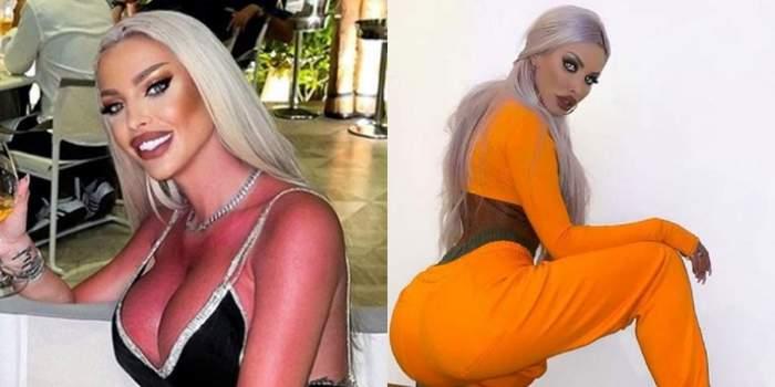 loredana chivu rosie la piele, arsa de soare