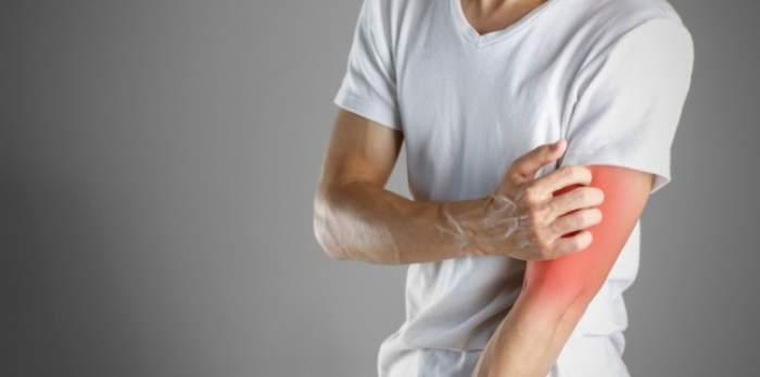 Ce boli ascunde pielea uscată și ce remedii există