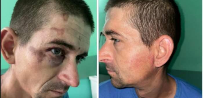 Un bărbat din Țicleni a ajuns la spital în stare gravă, după ce a fost bătut de mai mulți jandarmi. Medicii au descoperit urme de bocanci pe corp