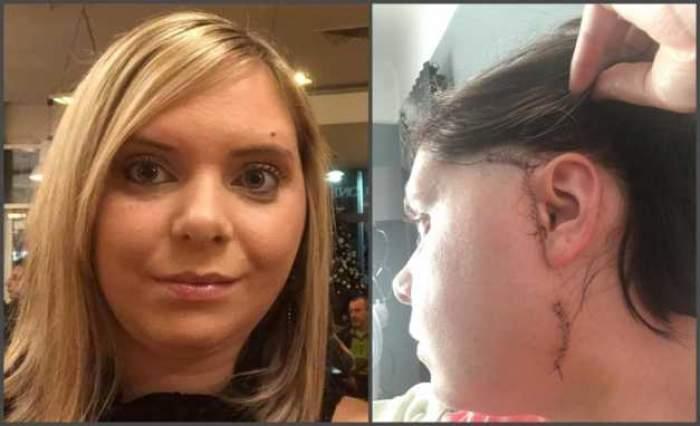 O femeie și-a dislocat mandibula în timp ce mânca un burger. A suferit cinci operații în urma incidentului / FOTO