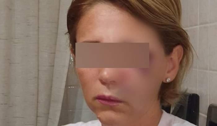 femeia bătută cu blur pe ochi